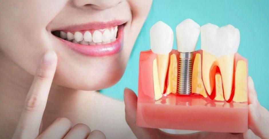 фото виды зубных протезов
