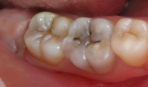 фото вылечить зуб в калининграде