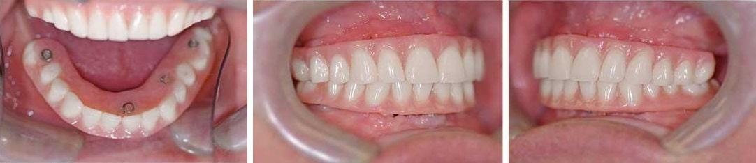 фото имплантация зубов в калининграде