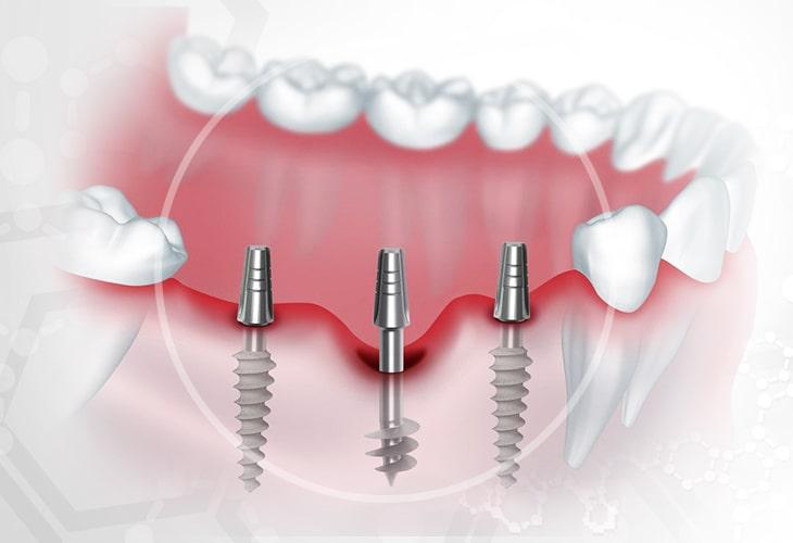 фото базальная имплантация зубов в калининграде