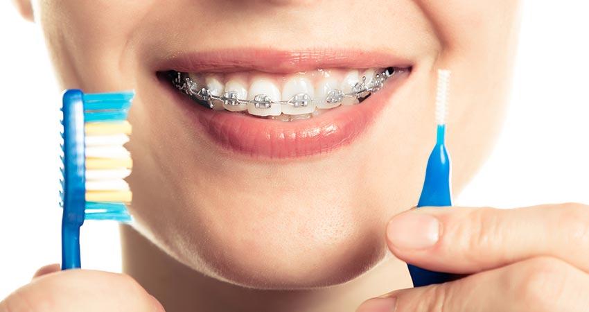 фото правила ухода за брекетами стоматология в калининграде
