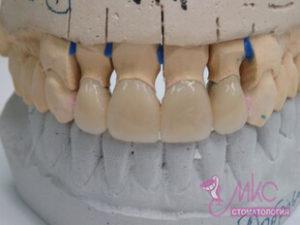 фото зубная коронка