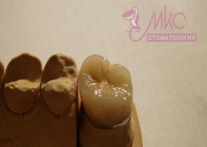 фото коронка зуб