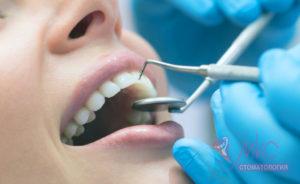 фото лечение зубов