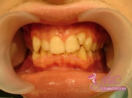 фото до ортодонтического лечения зубов