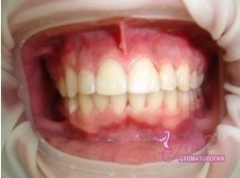 фото результат лечения зубов у ортодонта