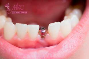 фото установка импланта зуба