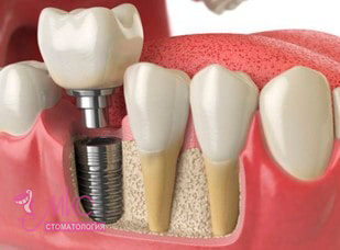 фото имплантация зубов калининград