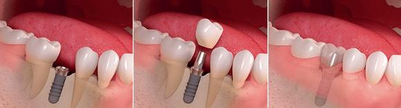 фото имплантация зуба в стоматологии